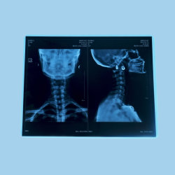 Zahnmedizinischer Röntgenstrahl-Film mit niedrigen Kosten und Qualität
