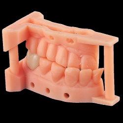 modello di stampa 3D con la protesi dentaria dell'intarsio di Emax dal laboratorio dentale di Shenzhen Lijing