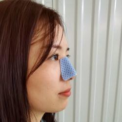 Sorgente diretta blu colore naso stecca per chirurgia plastica rinoplastica