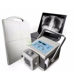 prix d'usine médicale numérique à haute fréquence Portable Mini 4kw machine à rayons X avec système de reprise après sinistre