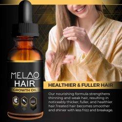 زيت نمو الشعر الطبيعي المخصص للرجال والنساء الأفضل فروة الرأس التي تستغرق 7 أيام