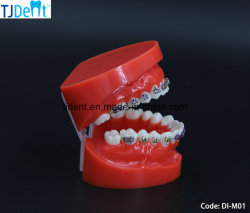 Anatomie de traitement de l'enseignement Othodontic dentaires Dents standard Modèle (DI-M01)