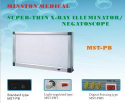 Mst-Pb doppelter zahnmedizinischer Negatoscope LED beweglicher medizinischer Röntgenstrahl-Film-Projektor