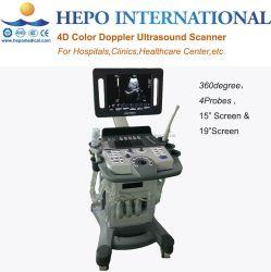 360 Grad-Umdrehungs-medizinische Darstellung-Diagnosen-Ultraschall-Scanner-Maschine