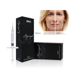 Bouchon de remplissage dermique faciale Reyoungel l'acide hyaluronique pour injection (Deep 1.0ML & 2,0 ml)