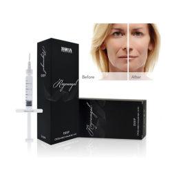 Depósito dérmico Facial Reyoungel ácido hialurônico para injeção (2ml)