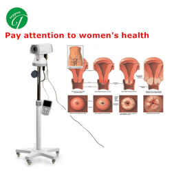 Equipos Médicos baratos portátiles digitales Vaginoscope colposcopio con la cámara
