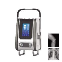 [م-د019ف] طبّيّ منتوج دكتور [سستم] [موبيل] [إكس-ري] [سكنّر] [ديجتل] [إكس ري] [بورتبل] آلة