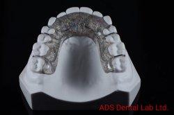 Dispositivo de retención de laboratorio dental Ortodoncia anuncios desde el laboratorio dental