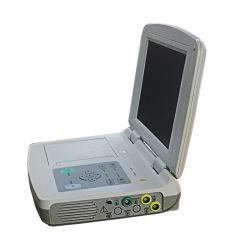 O alto desempenho economicamente aplicável Detector Obstétrica do Monitor Fetal