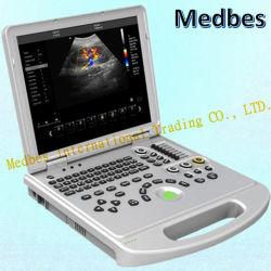 4D-Cw цветного доплеровского ультразвукового аппарата цветного доплеровского ультразвукового сканера .