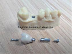 Numérique de précision de la Couronne en céramique de métal Implant dentaire