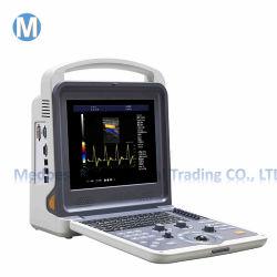 L'hôpital de l'Image numérique couleur de l'équipement de diagnostic à ultrasons