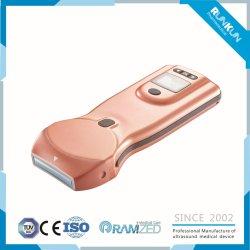 Ce diagnostic à ultrasons numérique approuvé l'équipement hospitalier d'échographie portable