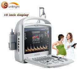 Хорошая производительность карманных цифровых диагностических Цдк цена Echographie системы
