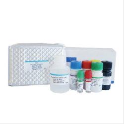 Biobase Kits de Elisa de diagnóstico clínico de la hormona del VIH Kits de prueba rápida y reactivos