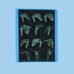 Blue Jet d'encre basé sur X-ray Films pour l'imprimante Canon