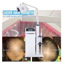 머리 성장 제품 새로운 다이오드 Laser 머리 재성장 기계 650nm 다이오드 Laser