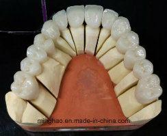 Prótesis de zirconio Bruzix coronas y puentes con cerámica de Shenzhen Minghao bucal laboratorio dental