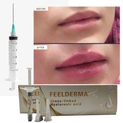 Acido ialuronico dell'anti della grinza dei nuovi prodotti di Feelderma dell'orlo iniezione cutanea del riempitore