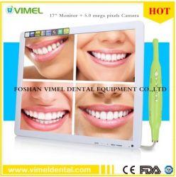 歯科用機器 Pip Oral Camera Intraoral Camera USB (モニター付き