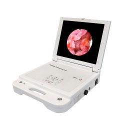 Portátil de buena calidad Ent cámara endoscópica con fuente de luz LED para Ent Medical cámara endoscópica