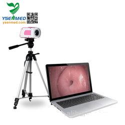 Gynécologie médicale utiliser Colposcope vagin numérique portable de l'examen de la vidéo