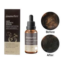 Ingrediente base de hierbas de suero de crecimiento del cabello 100% de crecimiento natural del cabello el aceite para hombres, mujeres