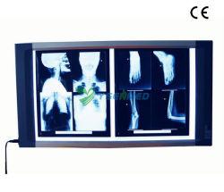 Medizinischer Röntgenfotografie-Röntgenstrahl-Film-Projektor