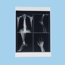 Laserdruck-Bedarfs-Röntgenstrahl-Filme, Arzneimittel