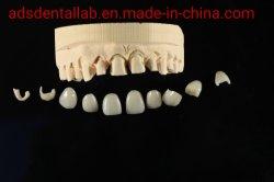 Carillas dentales porcelana Aesthic alta Corona apariencia natural en los anuncios de laboratorio dental