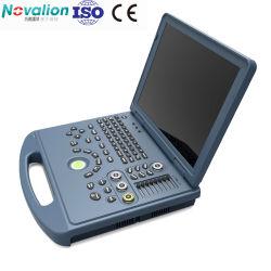 Nl060702004Fabricante Venta caliente portátil Doppler Color ecógrafo portátil con CE