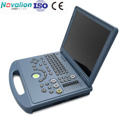 ماسحة محمولة فوق صوتية من الجهة المصنعة أجهزة محمولة تعمل بالموجات فوق الصوتية بالألوان Doppler Ultrasound مع CE