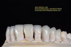 Schöne und natürliche Feldspathic Porzellan-Furnier-Blätter, zum der Lächeln-Harmonie zu verbessern gebildet im Anzeigen-zahnmedizinischen Labor