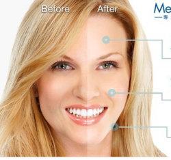 表面注射可能なHaの皮膚注入口Acido Hialuronicoのための2ml皮膚注入口