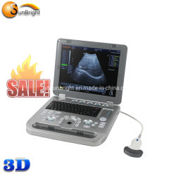 Médico Sunbright ultra-som portátil utilizado 15 Polegadas ultra-som 3D