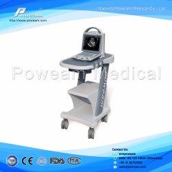 3D/4D Sonoscape цветного доплеровского ультразвукового сканера C20
