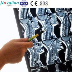 Pellicola a getto d'inchiostro a erogazione rapida pellicola a raggi X medica a getto d'inchiostro