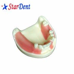 치과용 치아의 핫 셀링 실습 모델