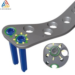 Medical Orthopaedic Surgical Trauma LCP Fracture Implant와 Cancellous Screws를 위한 뼈 Locking Plate Screw