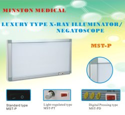 LuxuxMst-P vier Verbindungsstücke medizinischer Negatoscope Röntgenstrahl-Film-Projektor-heller Kasten