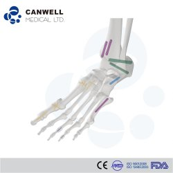 Vite senza testa di titanio medica del Herbert della vite di compressione di Canwell Cannulated con Ce, l'iso e la FDA per la vite ortopedica di trauma