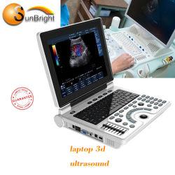 第2 3D 4Dの超音波のデジタル診断イメージ投射システムポータブルの超音波