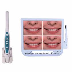 17 LCD van de duim Intraoral TandCamera van de Monitor met de Schijf en WiFi van U