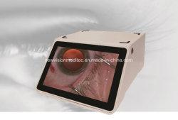 Cámara de vídeo de FHD y grabadora de vídeo para microscopio quirúrgico