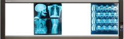 Banco de 4 Visor de película de rayos X