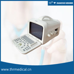 Hospital de Diagnóstico por Ultrasonidos portátil dispositivo médico (THR-US6601)