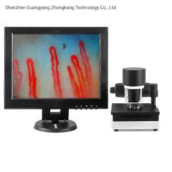 高い定義12インチの生物的Microcirculationの毛管顕微鏡