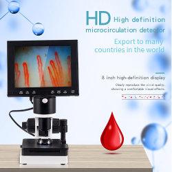 전문가용 네일폴드 모세관 마이크로 순환 USB HD 디지털 현미경 혈액 마이크로 순환