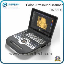"""15"""" portátil digital de diagnóstico médico Ecógrafo Doppler Color"""